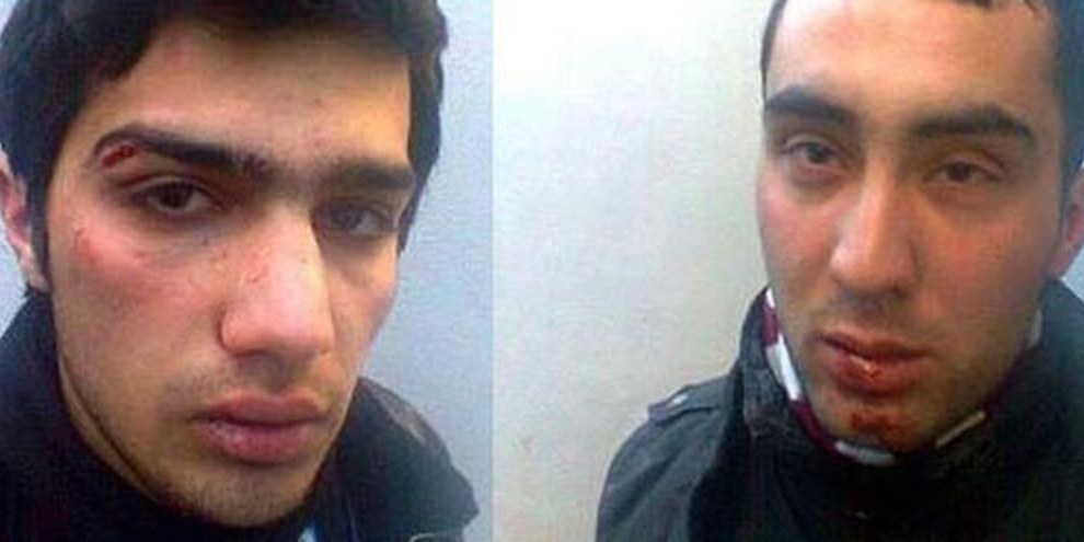 Jabbar Savalan und Dayanat Babayev wurden von Polizisten geschlagen. © Azadliq Newspaper