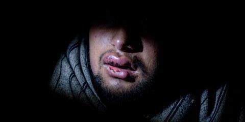 Die Vorwürfe sind nicht neu: Die Lippen des 17-jährigen Hammad aus Pakistan sind blutig und verschwollen, nachdem er im November 2018 von kroatischen Polizisten mit einem Stock verprügelt wurde. © Alessio Mamo