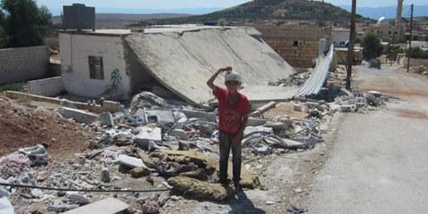 Dieser zehnjährige Junge wurde Ende August bei einem Bombenangriff verletzt. © AI