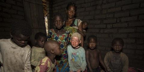 Depuis novembre 2014, au moins 14 personnes atteintes d'albinisme ont été assassinées, leurs membres sont utilisés dans des pratiques rituelles.© LAWILINK/Amnesty International