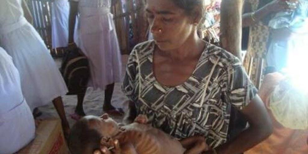 Une femme tient dans ses bras un enfant malnutri dans la zone du Vanni. © DR