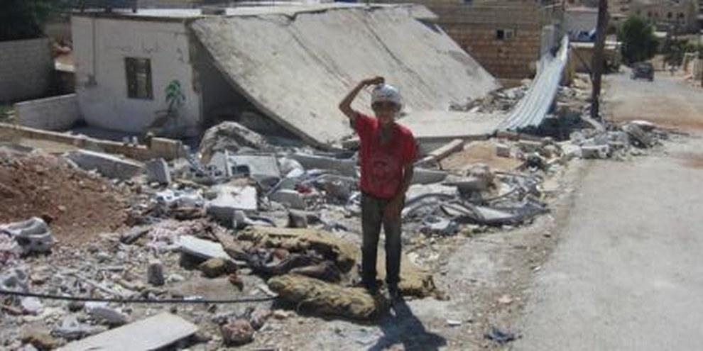 Un petit garcon de 10 ans blessé à la tête par les attaques aériennes © AI