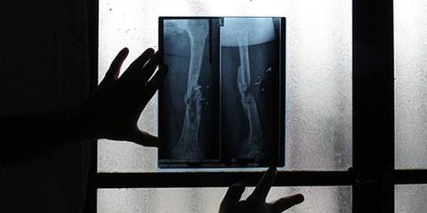 Radiografia di una donna siriana rifugiata, colpita da tiratori scelti nel 2011 © AI
